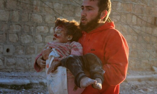 NYE ANGREP: Etter noen rolige dager, tok kampene og bombingene igjen seg opp i Øst-Aleppo. Minst 49 mennesker ble drept, bare på torsdag. Hundrevis av mennesker, som denn elille jenta, er skadd. Foto: Ahmed Al Ahmed / Anadolu Agency / Scanpix