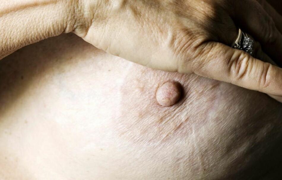 BRYSTKREFT: Hos kvinner er brystkreft, tykktarmskreft, lungekreft og føflekkreft de mest utbredte kreftformene. For menn er kreft i prostata, lunger, tykktarmen, blæren og urinveiene. Mens de aller fleste kreftsympotmer er tegn på noe helt ufarlig, finnes det en rekke symptomer du bør ta på alvor. Illustrasjonsbilde. Foto: Nina Hansen / Dagbladet