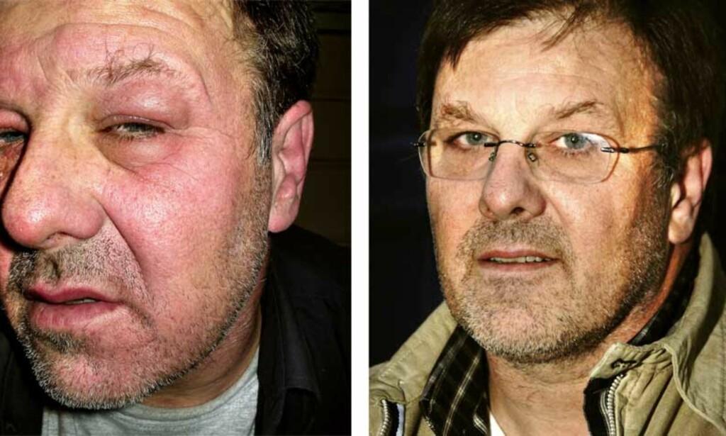 REAGERER: Slik så tidligere plattformarbeider Jan Erik Tandberg ut etter oppussingsarbeid og maling jula 2004. Foto: Privat/Jan Dahl