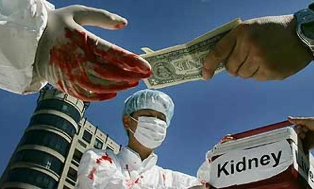 image: Kina innrømmer tyveri av organer