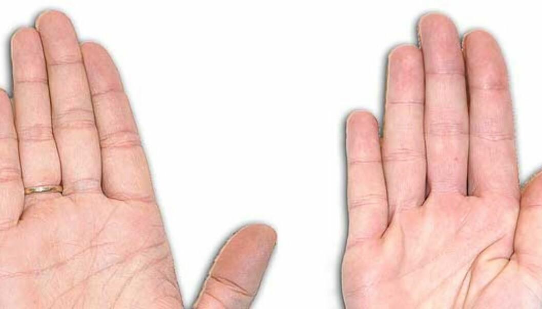 Homofilt hår og lesbiske fingre