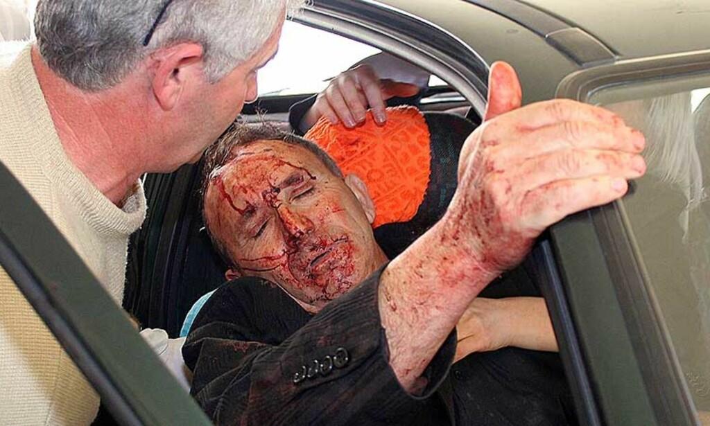 FRAKTET TIL SYKEHUS: En skadd mann blir hjulpet ut av en bil da han ankommer et militærsykehus i Tirana. Foto: AFP