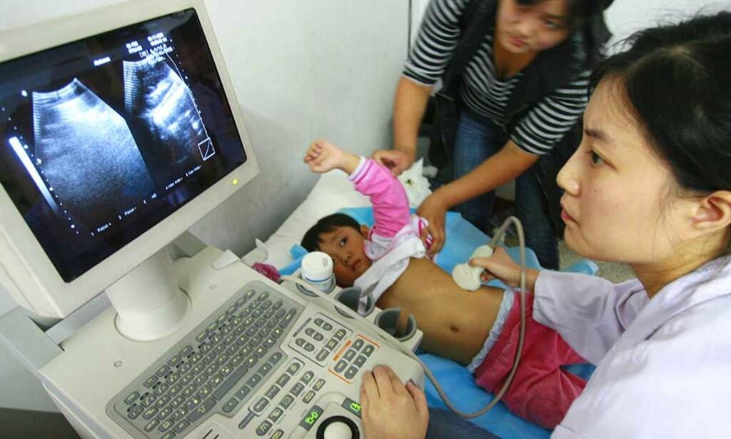 TRE DØDE: Til nå har tre babyer mistet livet i morsmelkerstatnings-skandalen i Kina. Her undersøkes et barn for mulig nyresvikt på et sykehus i Sichuan provinsen. Foto: REUTERS/Scanpix