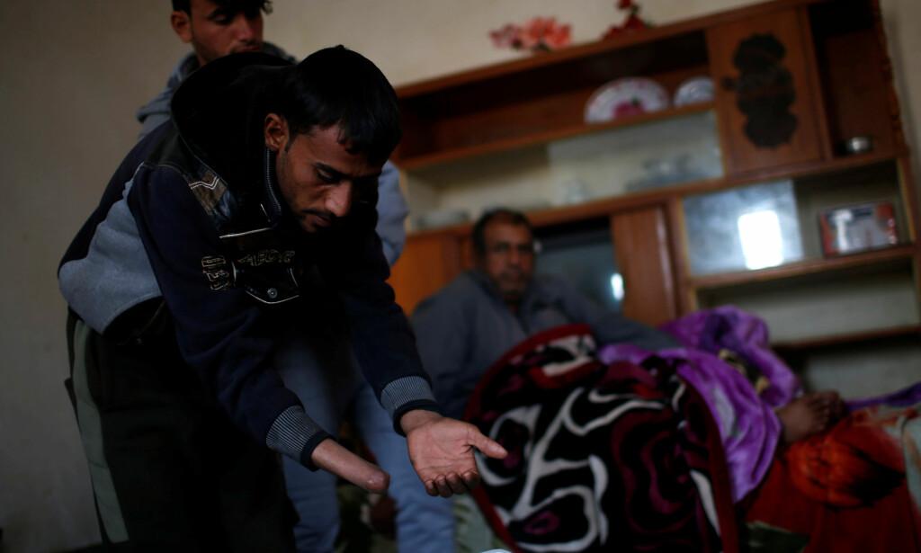 VARMER SEG: Mohammad Hassan (25) fikk hånda kuttet av. Nå forsøker han og varme seg på en ovn i det midlertidige hjemmet de har i en landsby utenfor Mosul. Foto: Mohammed Salem / Reuters / Scanpix