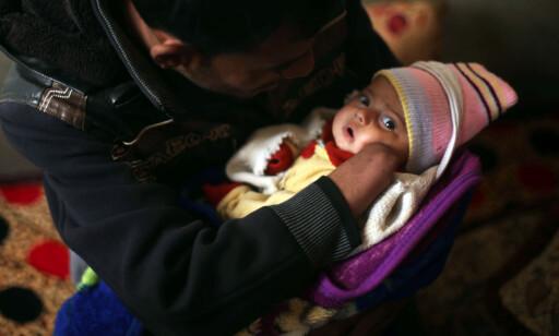 FÅTT EN DATTER: Mohammad Hassan (25) koser med dattera si. Nå håper han å få en håndprotese for at det skal bli lettere å finne en jobb for å forsørge den nye familien sin. Foto: Mohammed Salem / Reuters / Scanpix