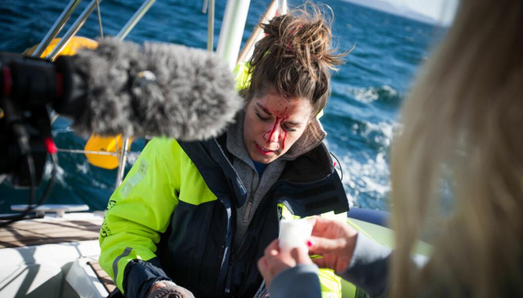 BLODIG: Toppblogger Kristin Gjelsvik (30) fikk et ublidt møte med et kamerastativ under tv-innspillingen til «Skattejakten LIVE» i helga. Foto: Helene Michaelsen