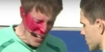 image: Kongsvinger får bot etter pepperspray-skandalen