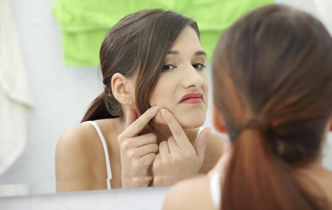 <strong>SOMMERPLAGE:</strong> Mens mange får bedre hud om sommeren, opplever også en del at kvisene spretter fram når de soler seg. Ekspertene har heldigvis gode råd for å fikse problemet. Foto: Getty Images/iStockphoto