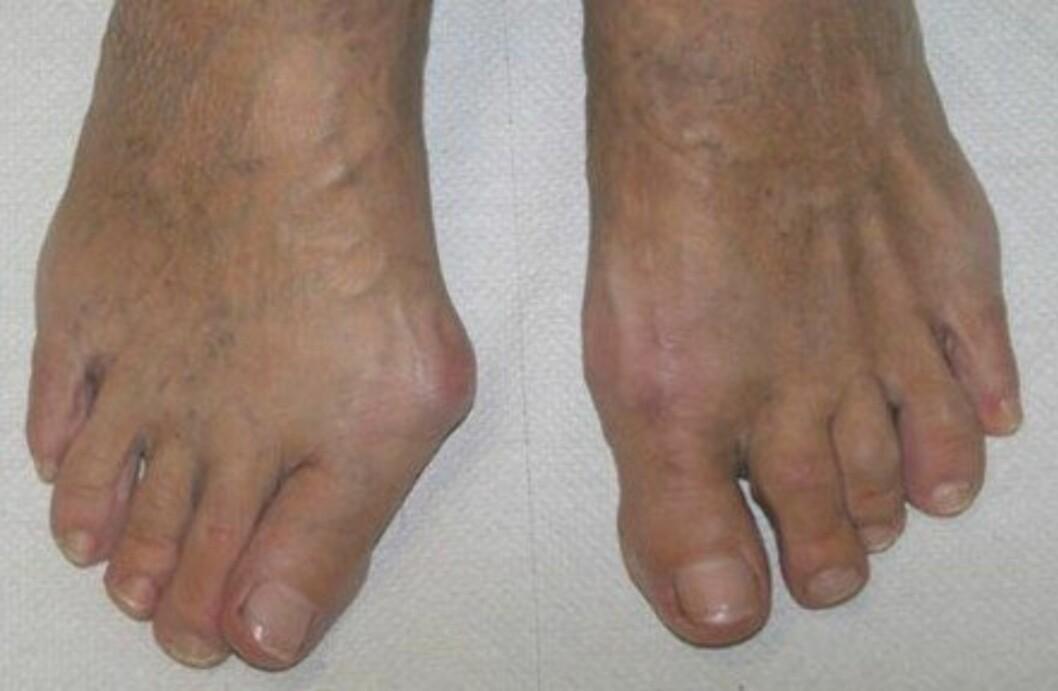 <strong>SE FORSKJELLEN:</strong> Denne pasienten har fått operert venstrefoten, men ikke høyrefoten. (Foto: NHI)