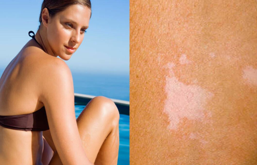 KAN VÆRE SOPP: Det er ikke sikkert de hvite flekkene som dukker opp på huden i sommersola er pigmentflekker. Det kan faktisk være sopp! Foto: Thinkstock/Science Photo Library
