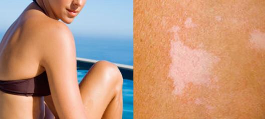 Får du hvite flekker på huden i sola?