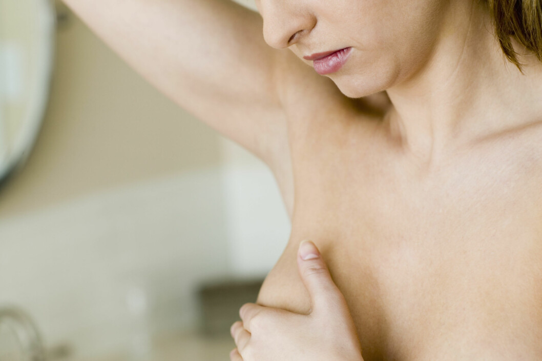 BRYSTKREFT: Kreft i livmoren, eggstokkene, bryst og tarm er noen av de vanligste kreftformene som kan skyldes gener. Foto: Scanpix/NTB