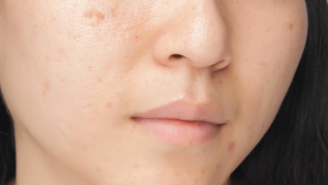 PIGMENTFLEKKER: Mens pigmentflekker ofte er mørke, er pigmentendringer som skyldes hudsoppen malassezia furfur ofte hvite. Hos mørkhudete personer kan imidlertid også disse flekkene være mørke, sier hudlege Ole Martin Rørdam. Foto: phasinphoto - Fotolia