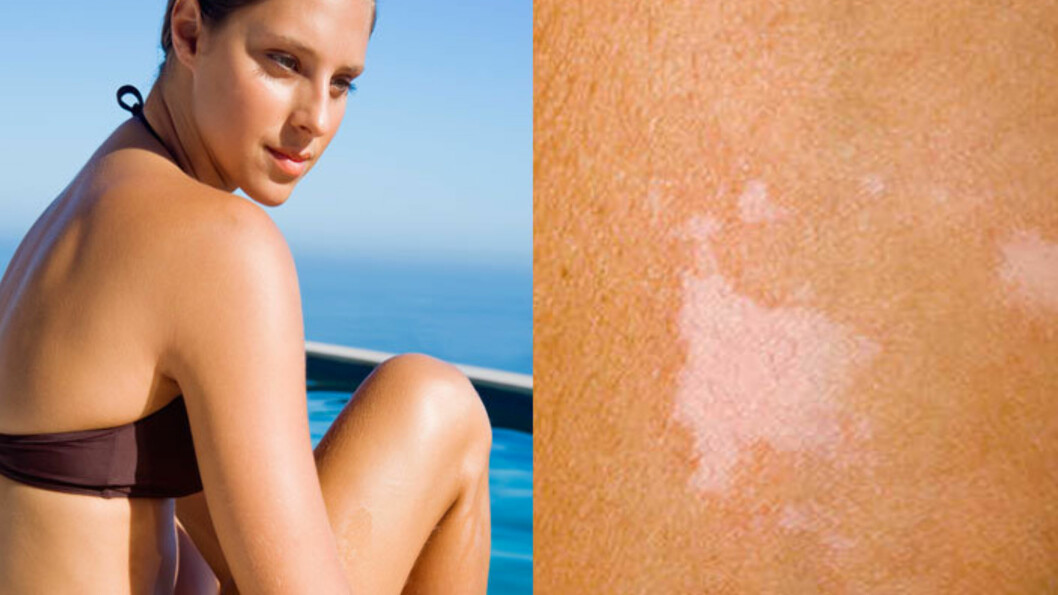 IKKE PIGMENTFLEKKER: Hvite flekker og områder på huden kan ha flere årsaker. En mulighet er at det skyldes en sopp, og da kan det behandles med en helt vanlig flassjampo, sier hudlegen.  Foto: Fotolia
