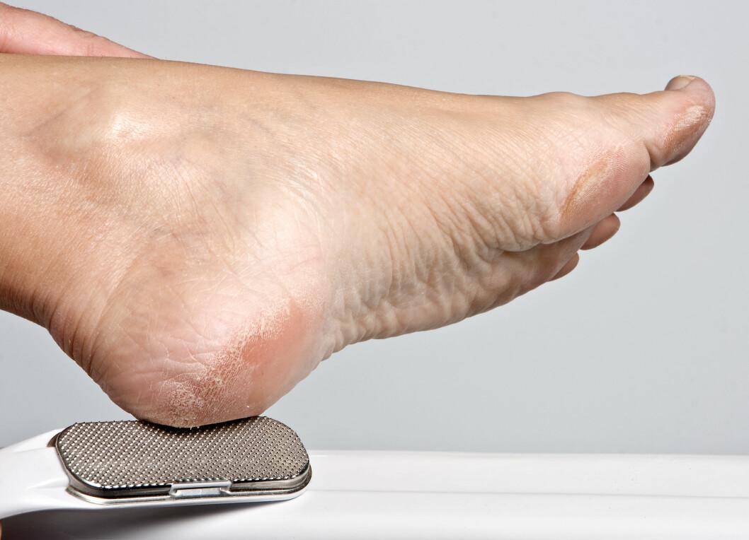 LEGG DEN VEKK: Selv om du kan file bort tørr hud på føttene, bør du droppe metallfila, råder ekspertene. Det er også bedre å file lite og ofte enn mye og sjelden. Vær forsiktig så du ikke tar for mye! Foto: Anyka - Fotolia