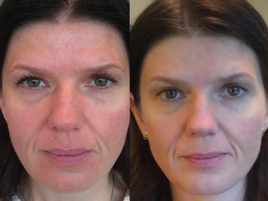 """FORSKJELL Selv om de største forandingene som at huden er fyldigere, strammere og føles """"heist"""", kan du også se at trimmen har gjort godt for hudoverflaten og gløden. Øyelokkene er også mindre tunge. Foto: Tone Skipa"""