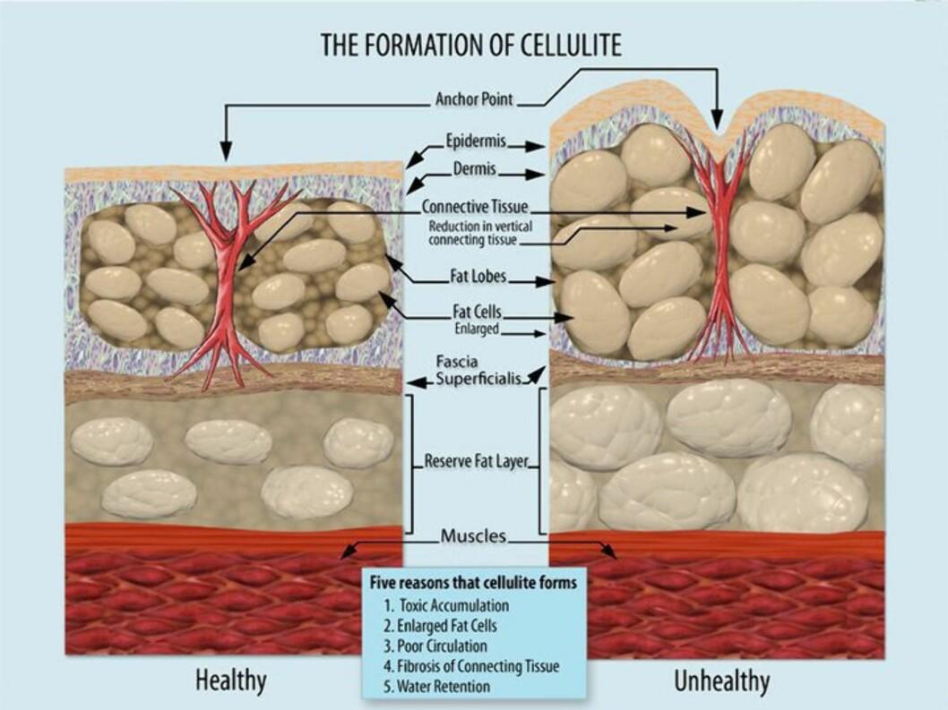 SLIK SER DET UT: Her kan du se hvordan fettcellene buler ut og skaper ruglete hud.  Foto: Wikimedia Commons