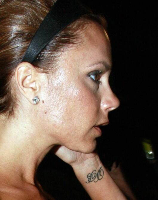 """RAMMET: Victoria Beckham har den typiske """"voksenaknen"""". Foto: All Over Press"""