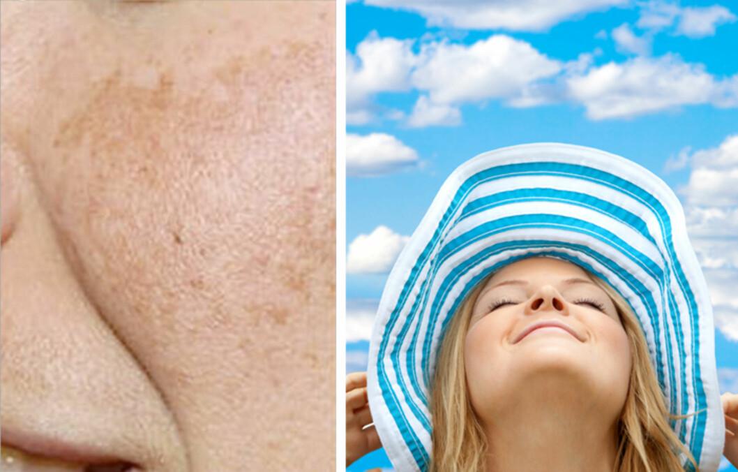 PIGMENTFLEKKER: Det aller viktigste du kan gjøre, er å bruke solfaktor hver eneste dag. Les mer om hvordan du kan behandle pigmentflekker som allerede har oppstått.  Foto: Colourbox / Thinkstock