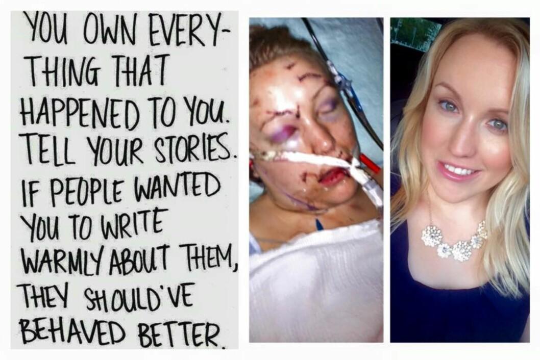 FØR OG ETTER: Slik så Melissa Dohme ut rett etter at hun ble angrept og slik ser hun ut i dag. Foto: Support Melissa / Facebook side