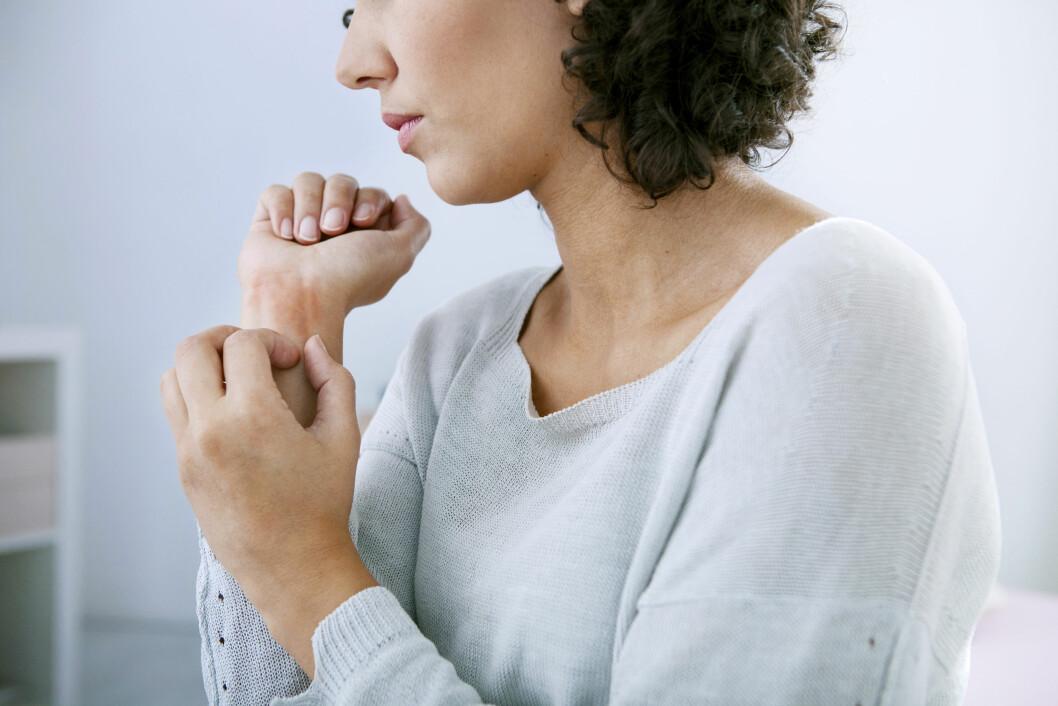 HUD: Hudsykdommen psoriasis er en av de mest utbredte autoimmune sykdommene. Foto: Shutterstock / Image Point Fr