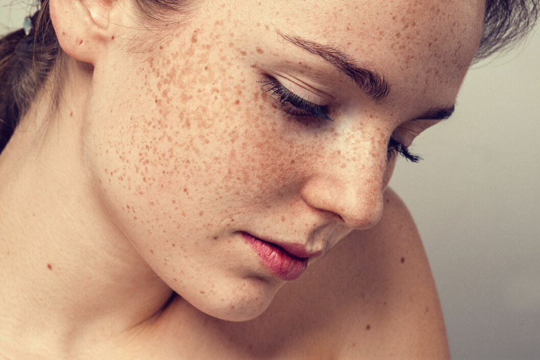 RAMMER FLEST KVINNER: Autoimmune sykdommer er et samlebegrep på rundt 80 ulike sykdommer, og kvinner er langt oftere rammet. Foto: Shutterstock / Irina Bg