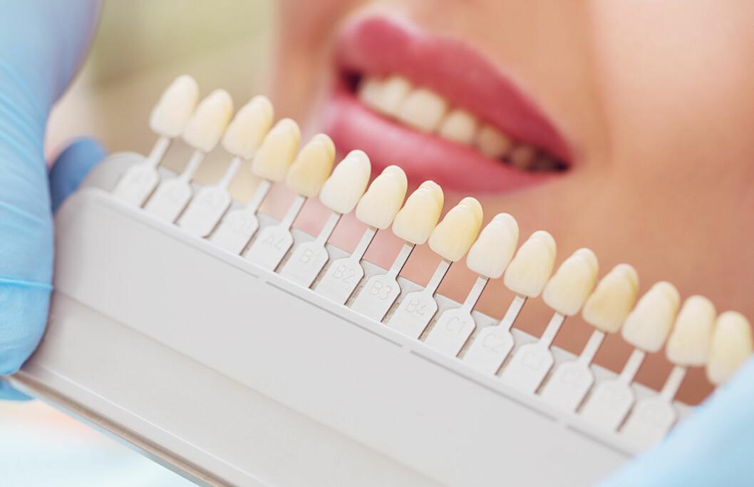 <strong>BLEKE HOS TANNLEGE:</strong> Tannlegene anbefaler å bleke hos dem, evt. få hjemmeblekning av dem, dersom du ønsker å unngå ubehagelige overraskelser. Foto: Shutterstock / Elaine Nadiv