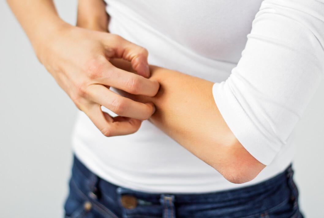 SYMPTOMER: Kontaktallergi kan gi utslett og eksem på huden.  Foto: Shutterstock / Kaspars Grinvalds