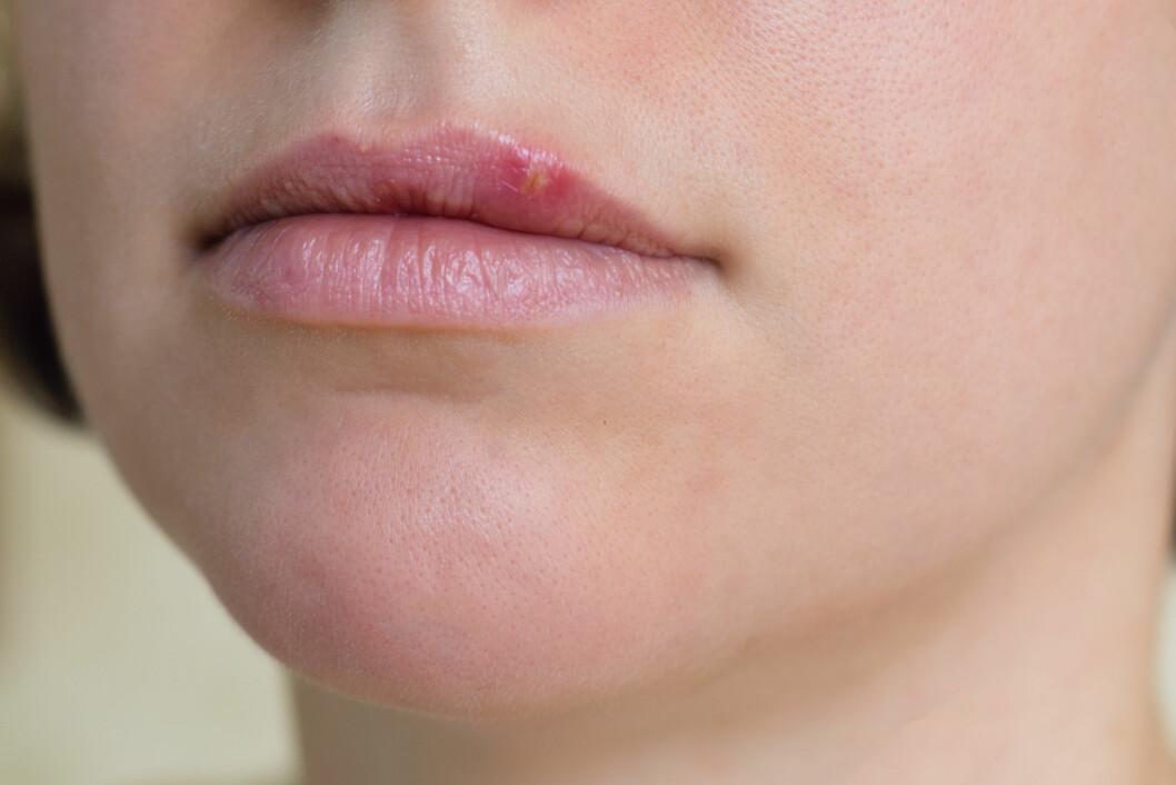 MUNNSÅR: HSV-1 smitter oftest fra munn til munn, men stadig flere europeere smittes fra munn til kjønnsorganer.  Foto: Shutterstock / Ekaterina_Molchanova