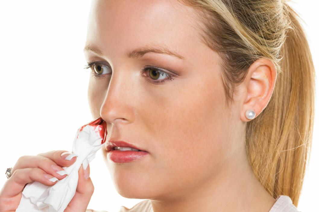 NESEBLOD ER ET VANLIG SYMPTOM: Personer med von Willebrand sykdom blør ofte mye neseblod.  Foto: Shutterstock / Lisa S.