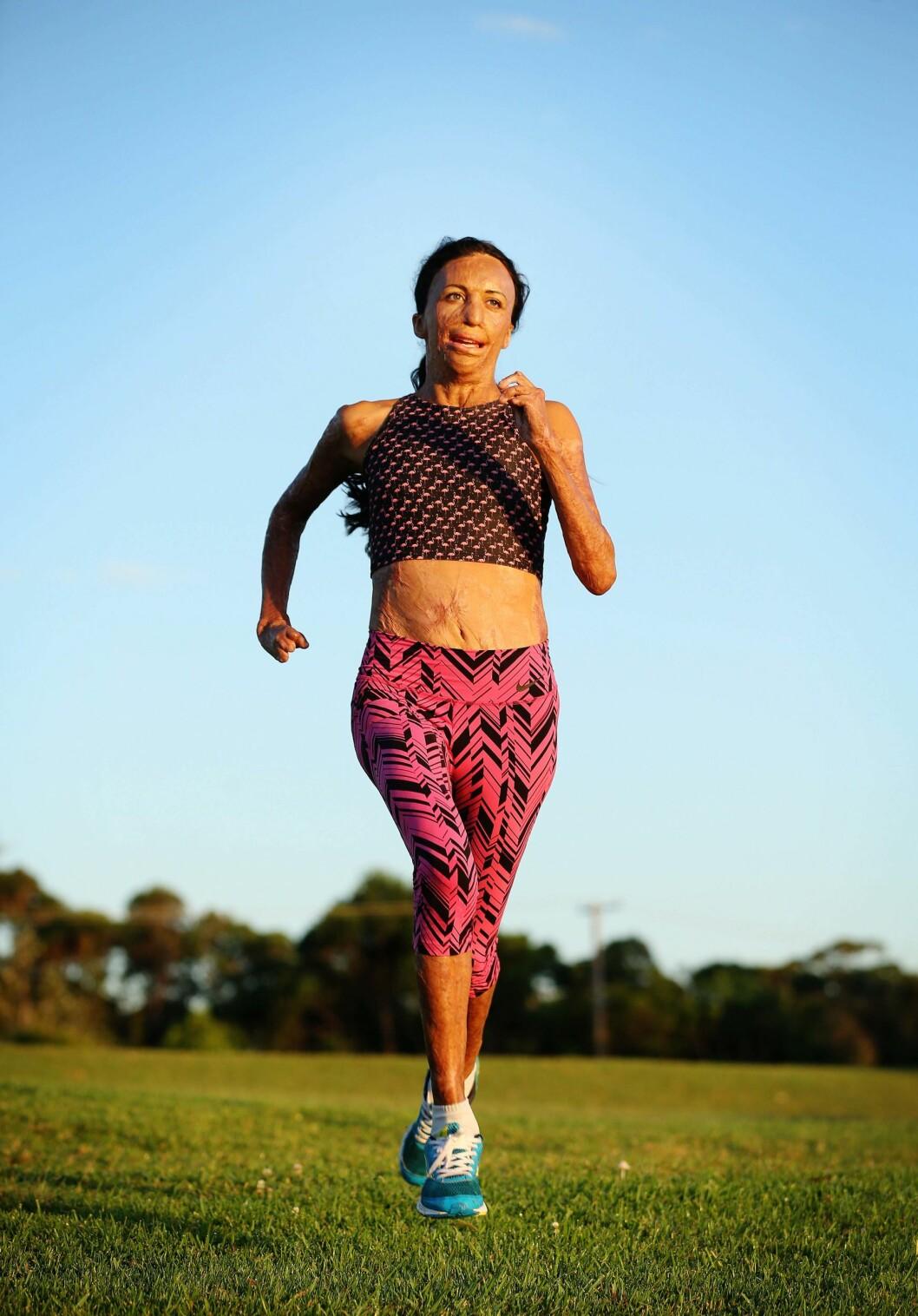 STERK: Turia Pitt fikk beskjed av legene om at hun mest sannsynlig aldri kunne løpe igjen. «Jeg skal vise dem», tenkte hun - og i mai gjennomførte hun Ironman Australia-triathlon på tiden 13:24:42. Dette bildet er tatt i forkant av løpet. Foto: NTB Scanpix