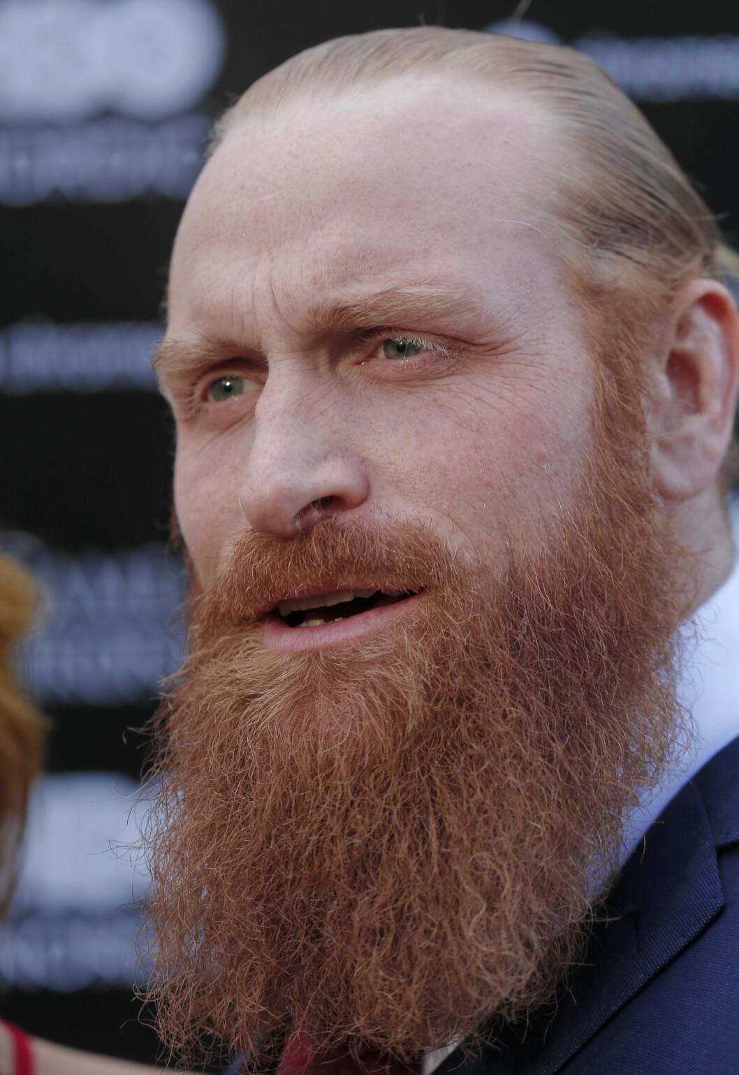 Vår egen Kristofer Hivju ser ganske så lik ut i virkeligheten, men vi må innrømme at vi liker det rufsete håret hans i serien. Foto: VG