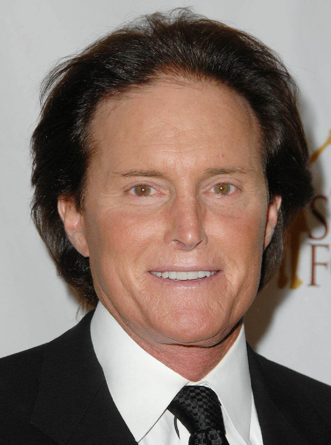 MEDIEOMTALT: Jenners ansiktsoperasjoner ble tidlig mye omtalt i media. Foto: Broadimage