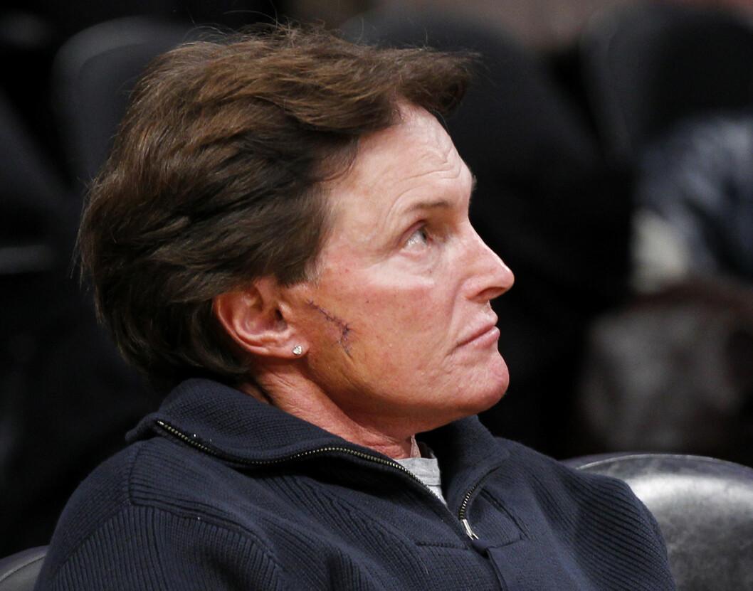 BLING: Øredobber som dette så vi ofte på Jenner. Legg merke til stingene på siden. Foto: Ap