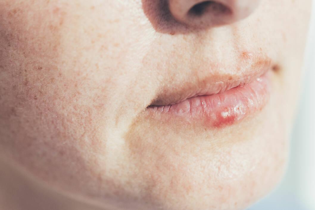 Herpes - Herpes er så utbredt at de fleste har det eller
