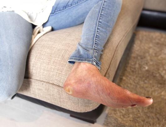 <strong>NÅ ER FØFLEKKEN BORTE:</strong> Auds hæl har fortsatt merker etter det hun har vært gjennom. Foto: Alf Øystein Støtvig