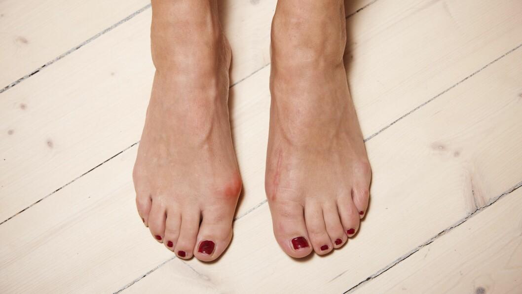 HALLUX VALGUS: Går du ofte med trange og høye hæler, kan det føre til tilstanden hallux valgus.  Foto: EXPRESSEN