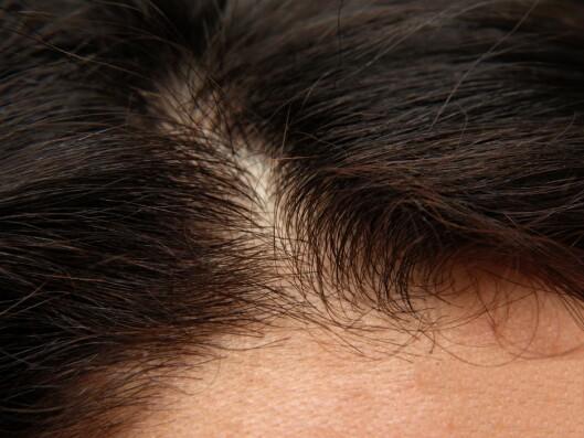<strong>«FEMALE PATTERN HAIRLOSS»:</strong> Du får redusert hårtetthet, håret blir kortere og tynnere og mindre pigmentert på issen, ved, «female pattern hairloss». Rundt 30 prosent av alle kvinner vil oppleve dette.  Foto: Zoonar GmbH / Alamy/All Over Press