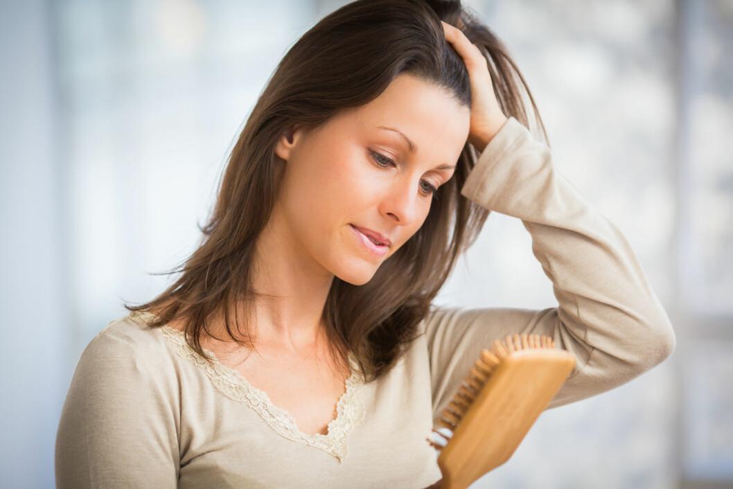 <strong>VANLIG:</strong> Vi mister alle ekstra mye hår i perioder. Noen ganger kan det være såkalt flekkvist håravfall. Over femti prosent av de som rammes av det får håret tilbake iløpet av et år.  Foto: All Over Press