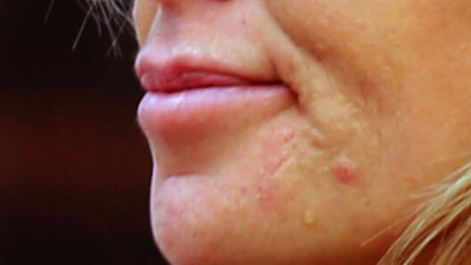 MANNLIGE KJØNNSHORMONER: Det er ofte androgener - som er mannlige kjønnshormoner, som spiller en stor rolle ift. hudproblemer. Foto: Splash News