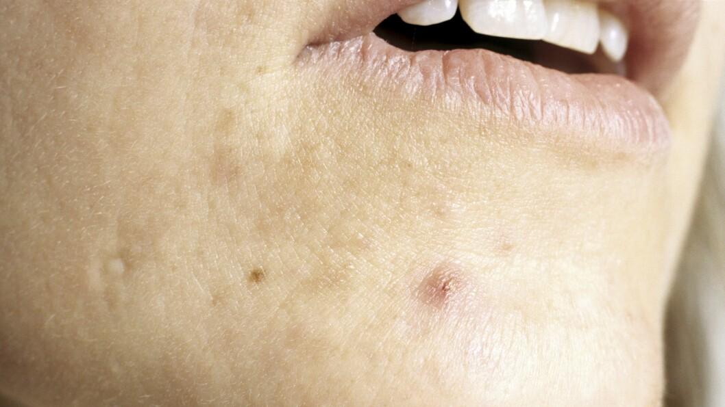 HORMONER OG KVISER: Det er ofte hormoner som har skylden for at du sliter med kviser i voksen alder.  Foto: Science Photo Library
