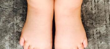 Får du ofte hovne hender eller føtter?