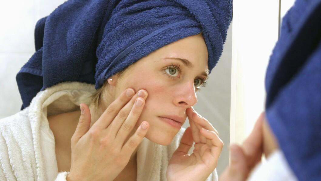 ARR ETTER KVISER: Har du klemt mye på kvisene dine? Det kan fort bli til arr.  Foto: Samfoto Argus