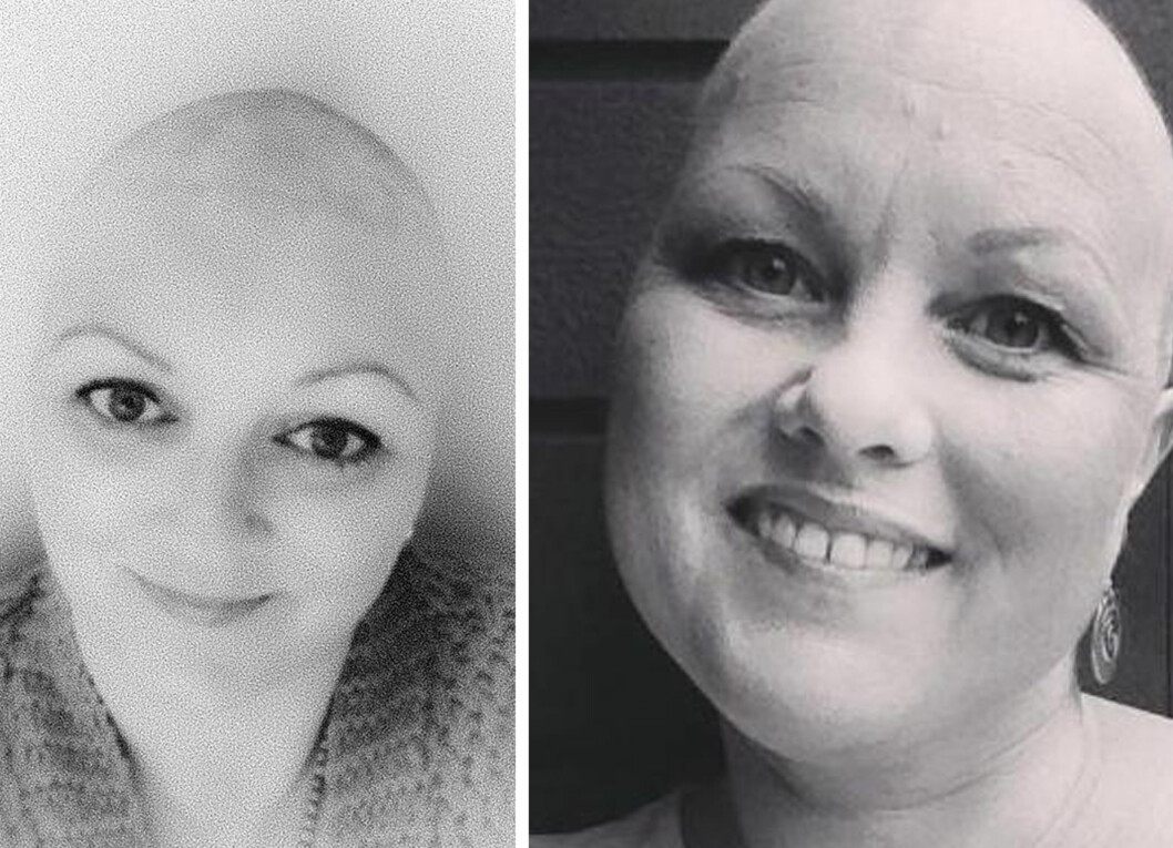 POSTET SKALLET-BILDER: Både Lene Skotte Sørland (t.v.) og Kristin Eidem Fostervold ble diagnostisert med brystkreft og mistet håret etter cellegiftbehandling.  Foto: Privat