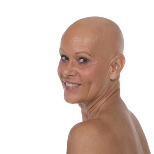 POSTET SKALLET-BILDE: Trine Rode (54) var en av flere som la ut bilde av seg selv uten hår på Facebook. Foto: Privat