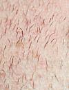 hår på kroppen