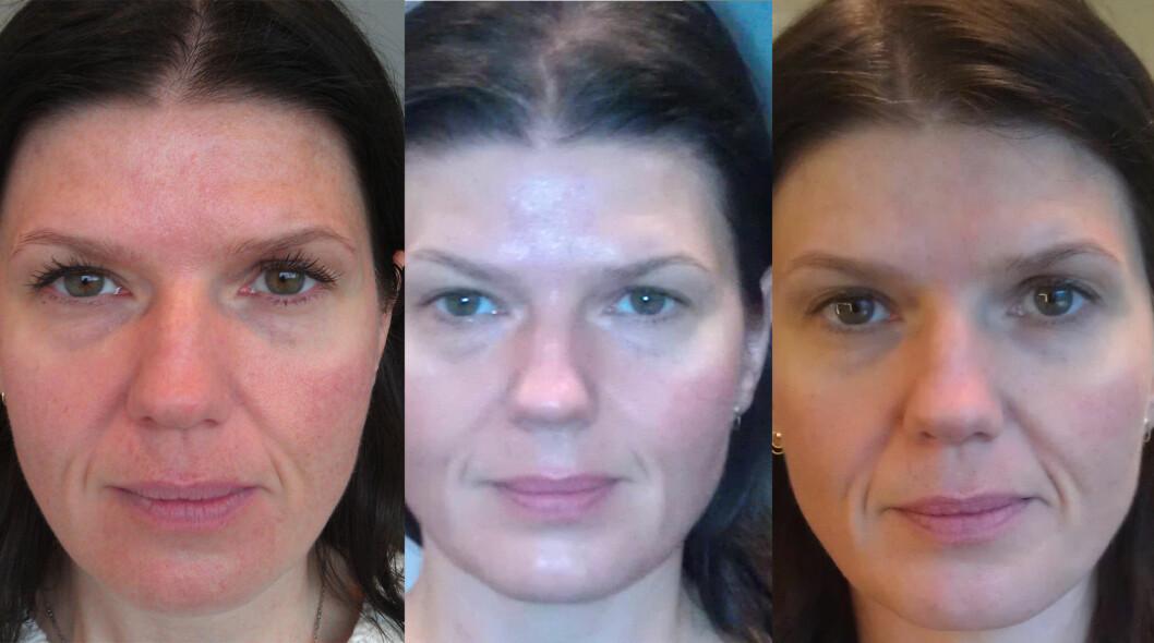 <strong>ANSIKTSMASSASJE:</strong> Før behandling, rett etter seks behandlinger og en uke etter siste behandling.