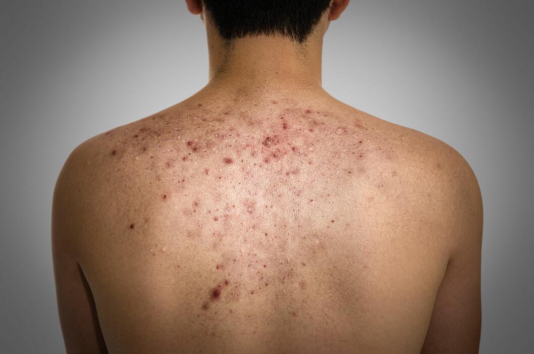 LIKER SEG PÅ RYGGEN: Hudormer og kviser på ryggen kan være et stor problem for både kvinner og menn.  Foto: Fotolia