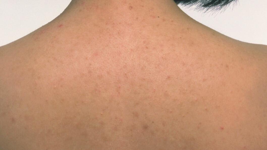 UREN HUD: Det er ikke bare i ansiktet hudormer og akne dukker opp, også på kroppen, og ofte på ryggen. Foto: All Over Press
