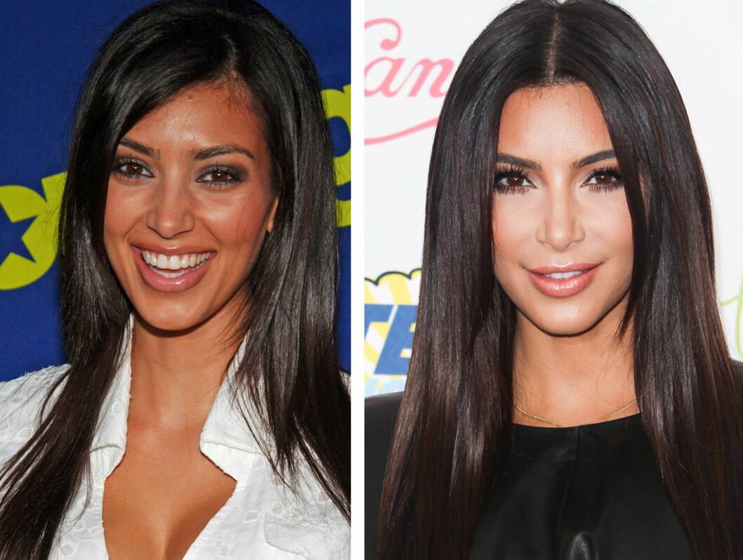 <strong>BITTESMÅ ENDRINGER:</strong> Kim Kardashian har aldri innrømmet det, men det er tydelig at hun har gjort ørsmå endringer på utseendet sitt (blant annet tennene)  - her ser du et bilde fra 2006 (til venstre) og et bilde fra tidligere denne måneden.  Foto: All Over Press